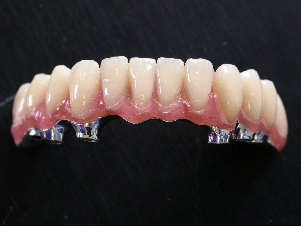 La barre implantaire, une solution radicale pour pallier à  une édentition complète